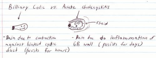 a cute cholecystitis